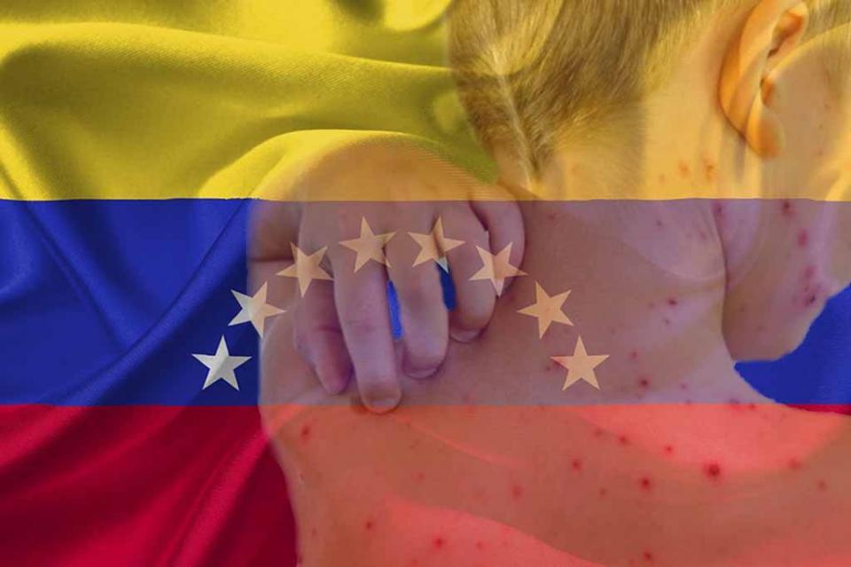 Alertan sobre epidemia de sarampión en grupo indígena venezolano