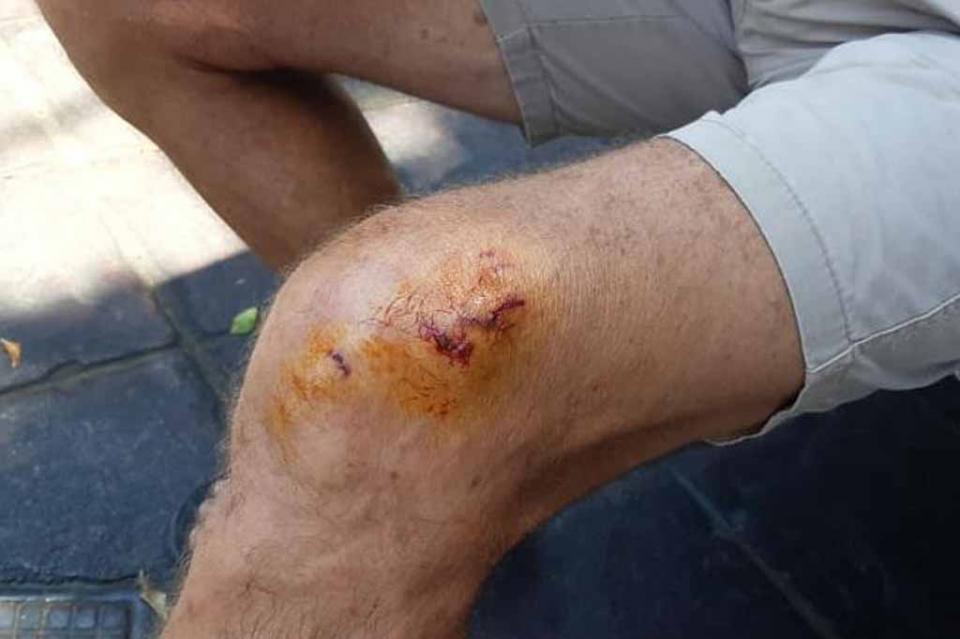 Ataca perro a persona que caminaba por Malecón de La Paz
