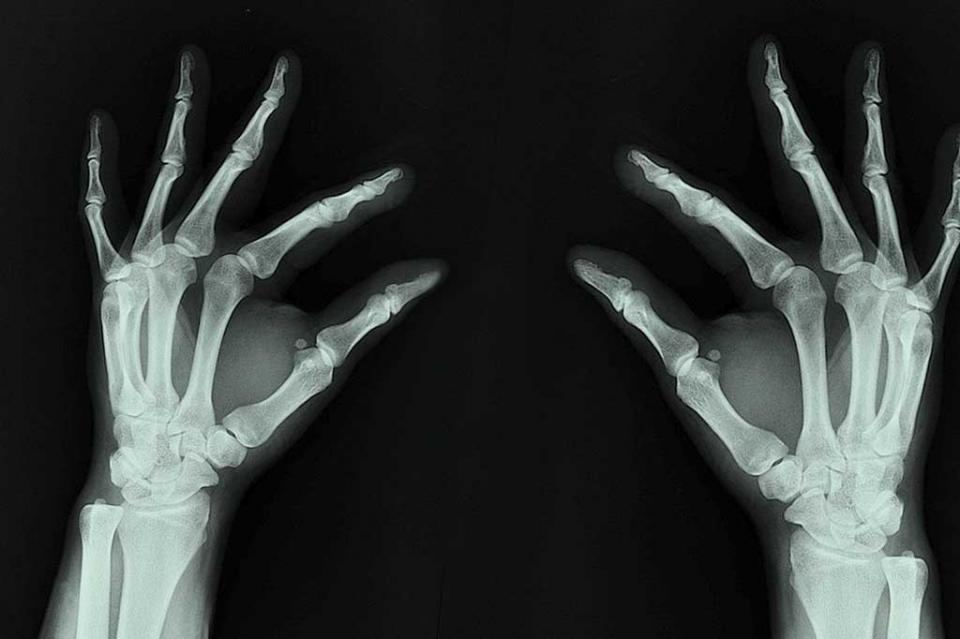 Uno de cada cinco hombres mayores de 50 años padece osteoporosis