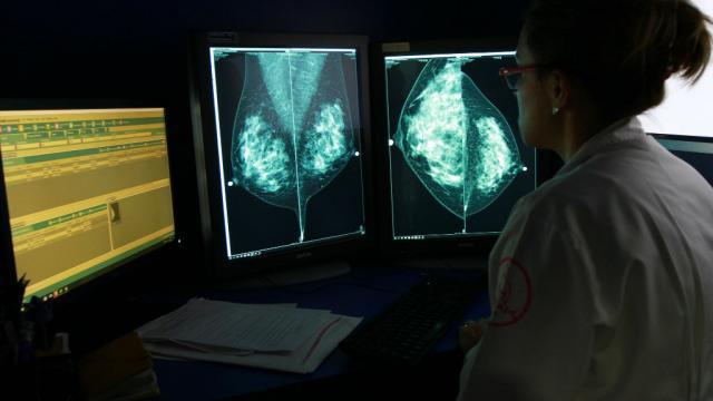 Tecnología 3D sería útil para reconstruir senos en mujeres con cáncer