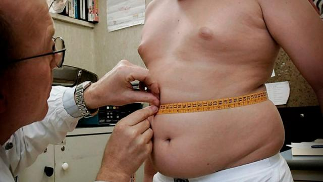 Obesidad-coronavirus