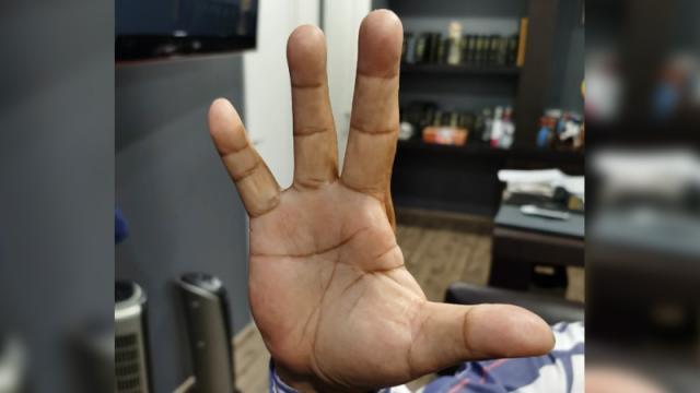 Sindicato de Pemex obliga a trabajadores con amenazas a mutilarse para cobrar seguro
